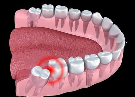 هزینه کشیدن دندان عقل قیمت کشیدن دندان عقل فک بالا و پایین کلینیک دندانپزشکی Tehran Smile