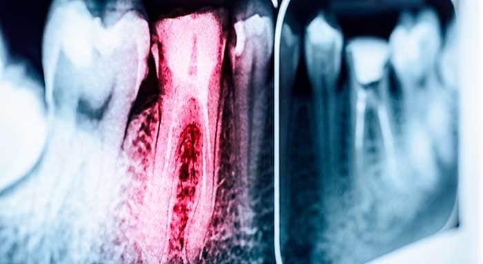 اعصاب از دست رفته دندان
