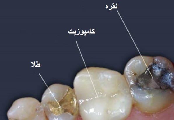 انواع مختلف مواد پر کردن دندان