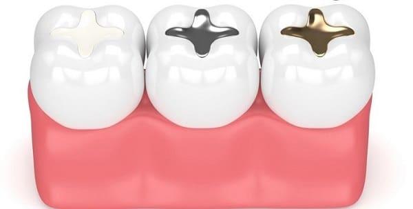 انواع مواد پر کردن دندان در قیطریه، آجودانیه و نیاوران