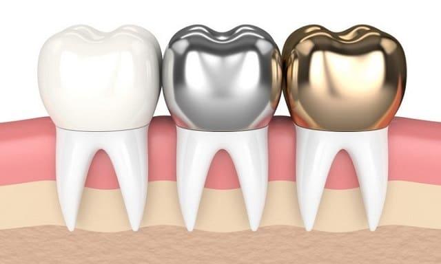 ترکیبات مورد استفاده تعویض روکش دندان