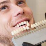 تفاوت کامپوزیت و لمینت دندان کامپوزیت بهتر است یا لمینت دندان؟