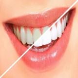 آيا جرم گيری برای دندان ضرر دارد؟