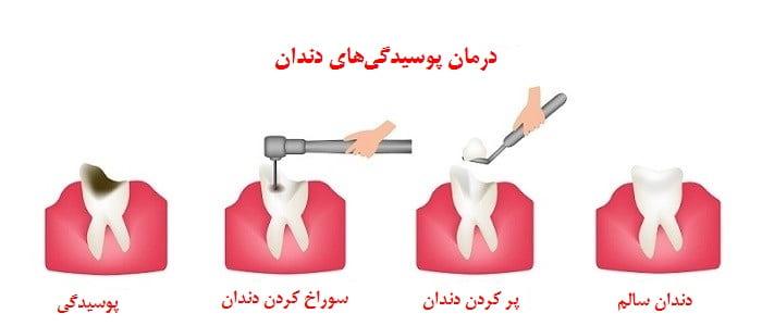 درمان پوسیدگیهای دندان