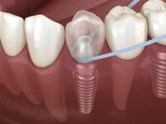 رعایت بهداشت دهان و دندان جهت افزایش طول عمر ایمپلنت