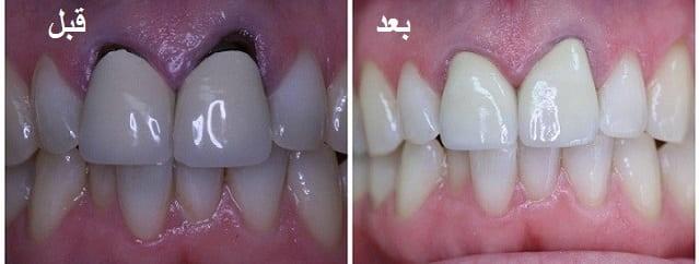تعویض روکش دندان بدلیل از دست دادن زیبایی خود