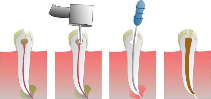 ضرورت عصبکشی دندان