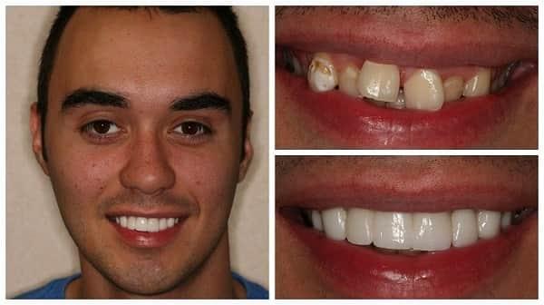 مزایای روکش پرسلن دندان