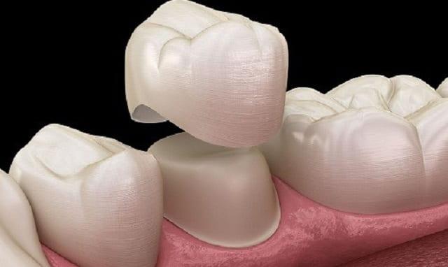 نحوه تعویض روکش دندان