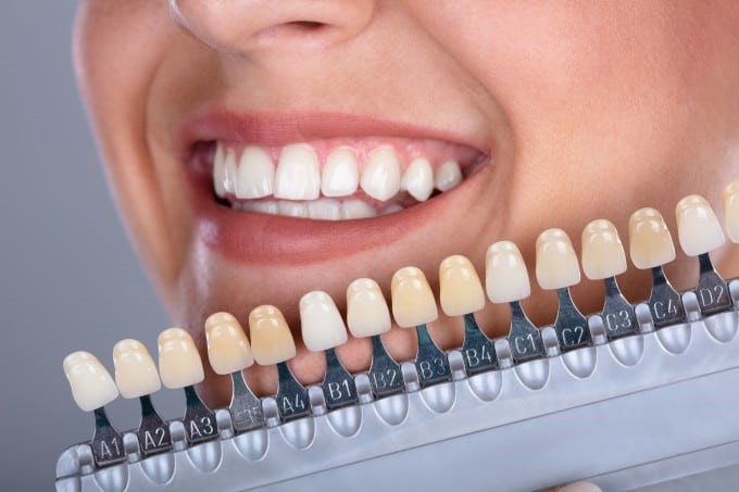 نحوه نصب انواع لمینت دندان