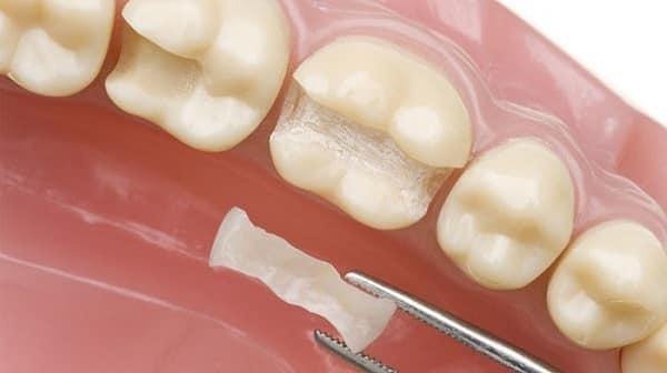 پر کردگی کامپوزیت دندان
