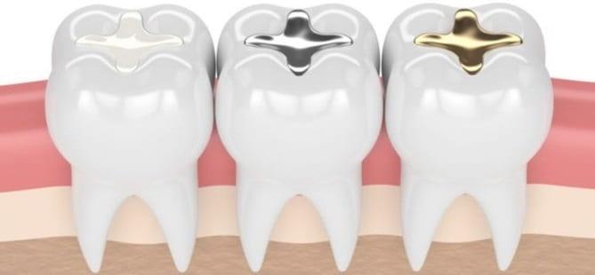 گزینههای جایگزین برای آمالگام دندان