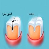 فیشور سیلانت، شیار بندی (شیارپوشی) دندانها، درزگیری مینای دندان
