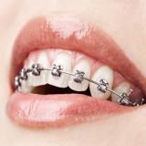 بعد از ارتودنسی: نحوه مسواک زدن،نخ دندان و سایر مراقب ها