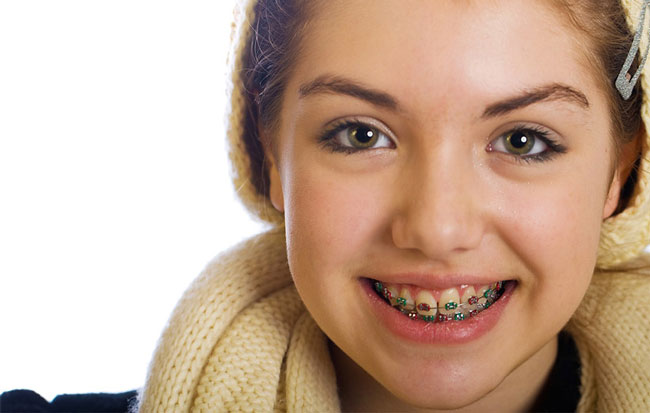 Orthodontic-Children