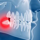 جراحی و کشیدن دندان عقل نهفته: عوارض، هزینه و تسکین درد آن