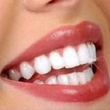 بهترین راه سفید کردن و بلیچینگ دندان با لیزر