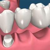 بریج یا پل دندانی: علت، مزایا و هزینه