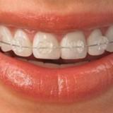 انواع ارتودنسی دندان (ثابت،متحرک و نامرئی) به همراه هزینه، عوارض