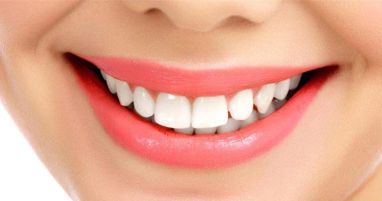 perfect-smile-760x400