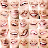 اصلاح طرح لبخند (لبخند هالیوودی) و خنده زیبا